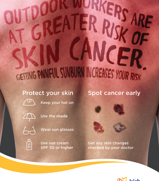 Be Smart and Protect Your Skin Against Cancer
